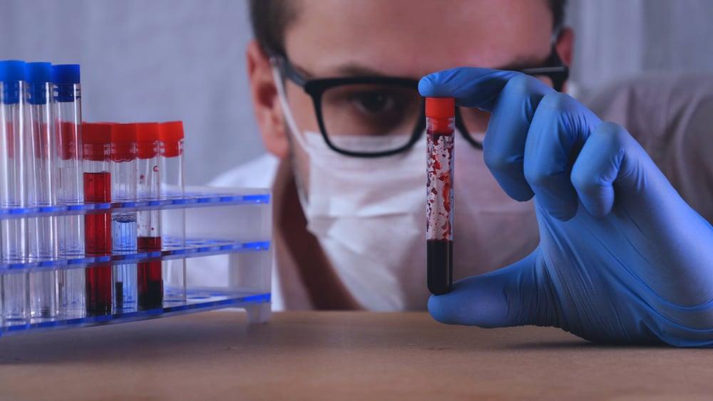 Biomedicina é uma das das profissões da área da saúde que estão em alta